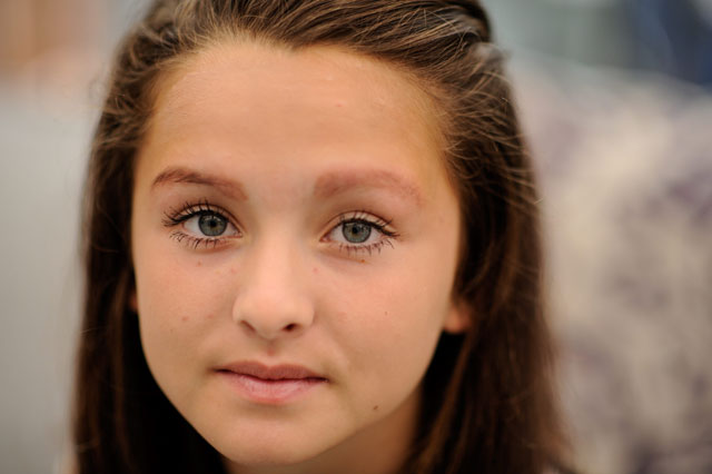 teen had eyebrows burned off by tiny