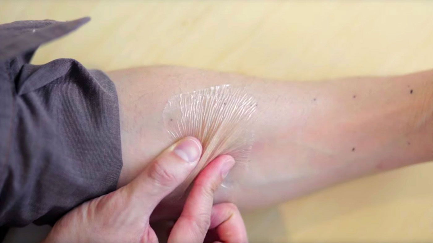 Elastic 'second skin' could treat extreme conditions