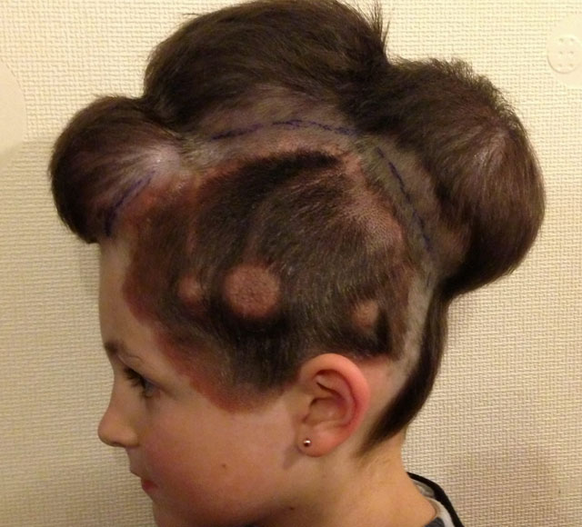 Doctors inflate balloons under girl's scalp to remove huge birthmark
