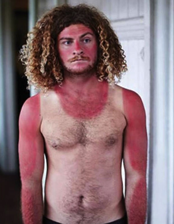 funny sunburns, worst sunburns, tanktop sunburn