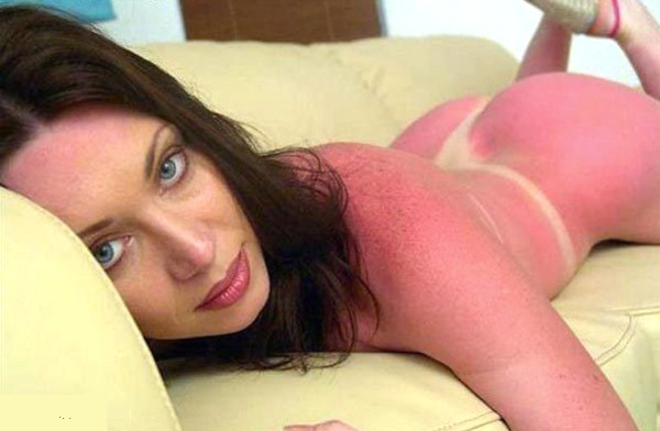 funny sunburns, worst sunburns, g-string sunburn
