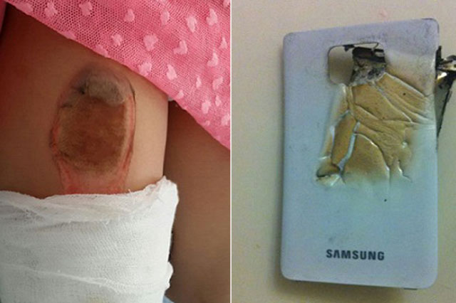 Girl, 7, suffers horrific burns after smartphone exploded in her pocket