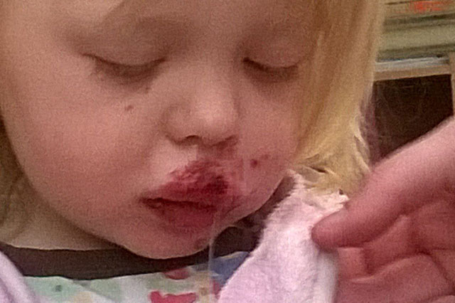 Toddler's lip sewn back on after dog attack while feeding ducks