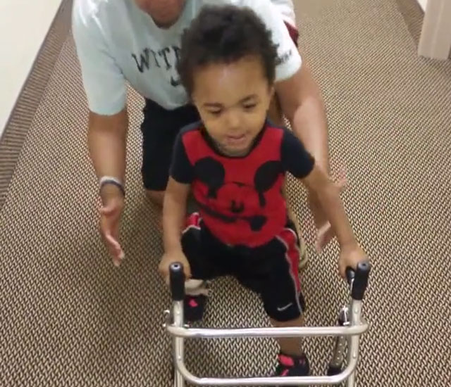 2 year old amputee learns to walk