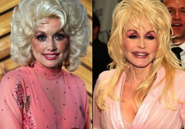 Dolly Parton Boob Job 78