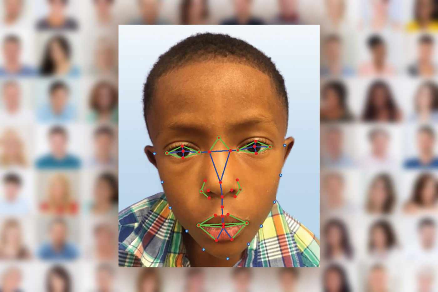 Facial recognition will help doctors detect rare genetic disease