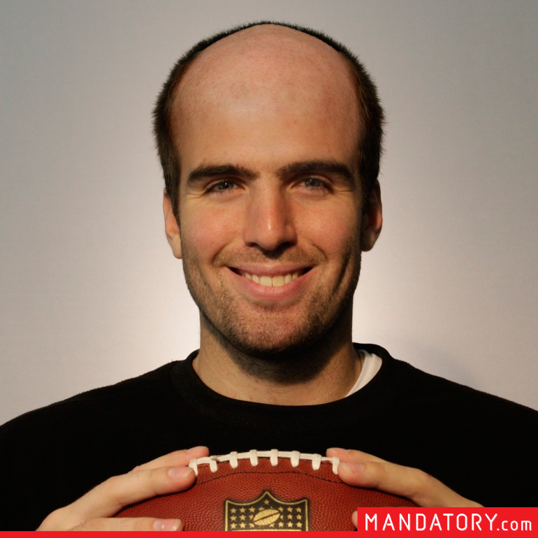 todays nfl quarterbacks if they were bald