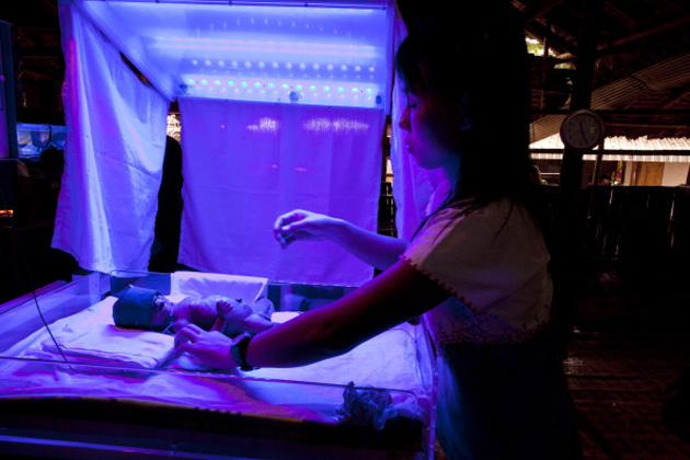 Blue light phototherapy for a newborn