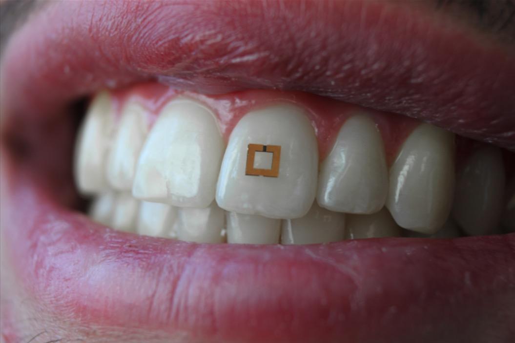 Diät-Wahn: Chip auf dem Zahn registriert Zucker, Salz und Alkohol