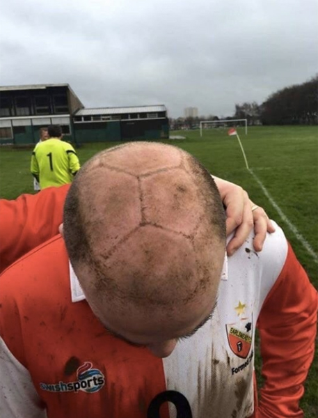 薄毛男性のくっきりすぎるヘディング跡が話題に 「動くサッカーボール頭だな」