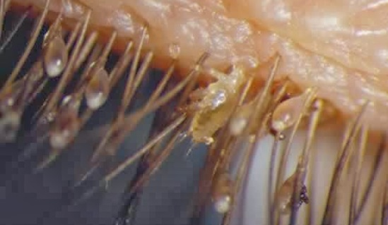 Microscopic Organisms Living In Your Eyelashes 12 Facts That Will Abs...
