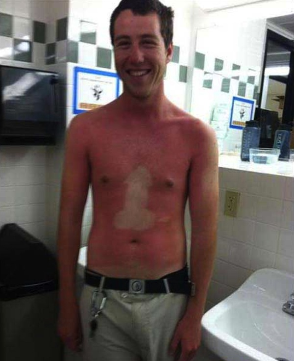 funny sunburns, worst sunburns, penis sunburn