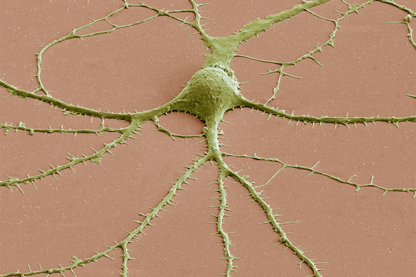 A false-color photomicrograph of a neuron, a key component of the central nervous system.