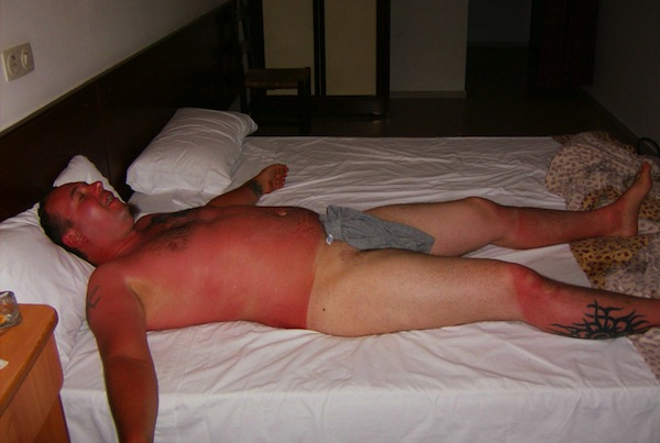 funny sunburns, worst sunburns, naked man sunburn