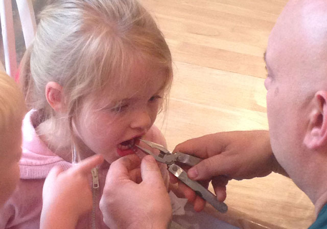 Paramedic removes magic wand from fairy girl's tooth!