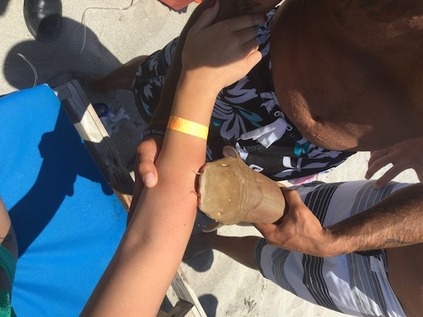 Florida Woman Taken To Hospital With Small Shark Still Attached