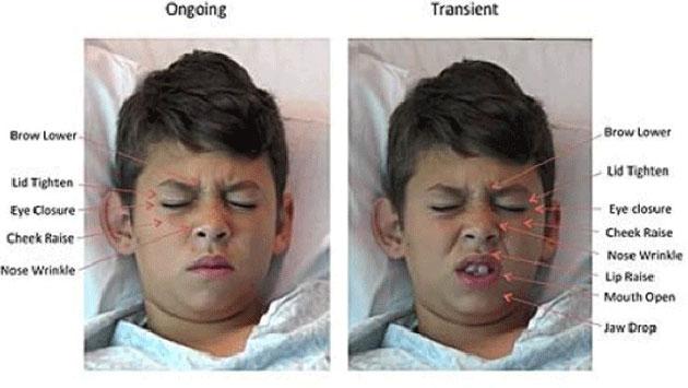 UC San Diego's computer vision pain algorithm