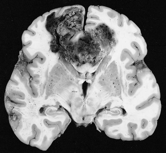 Glioblastoma no tratado. Examen macroscópico.