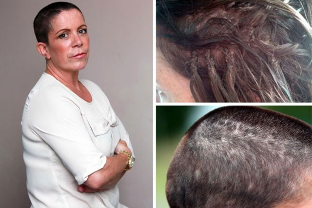 Mum, Alexis Stanton, forced to shave head after having hair extensions attached with super glue