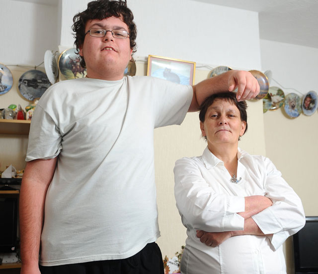 Teenager grows EIGHT INCHES in just one year