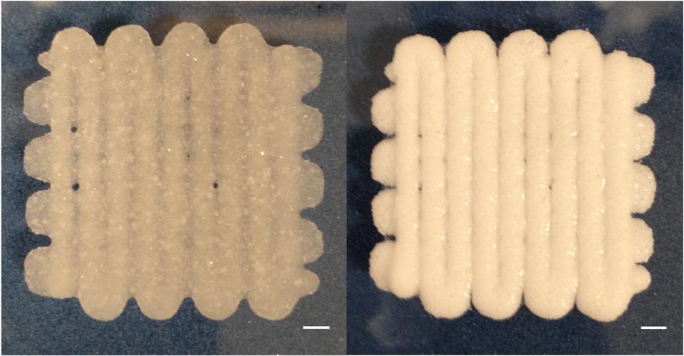 3D-printed 'dough' helps fix your fractured bones