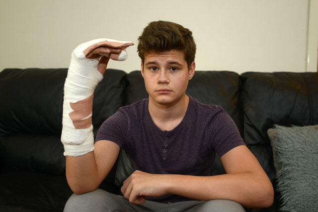 Firework breaks schoolboy's hand after exploding in bedroom