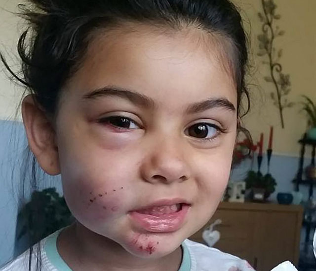 Hit-and-run cyclists leave TYRE MARKS on four-year-old girl's face