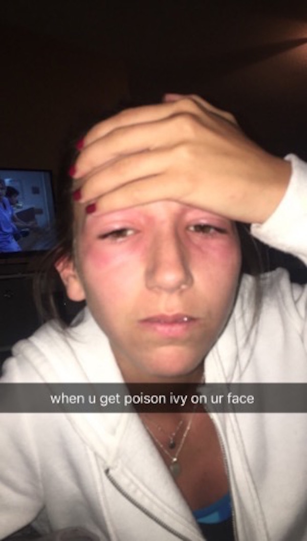 Poor Girl Gets Poison Ivy On Her Face, Sister Shares Pictures With The Internet