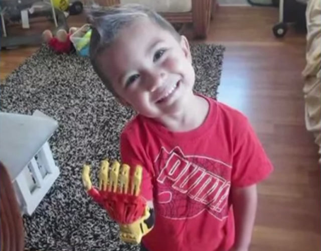 boy fitted with 3d printed 'iron man' prosthetic hand