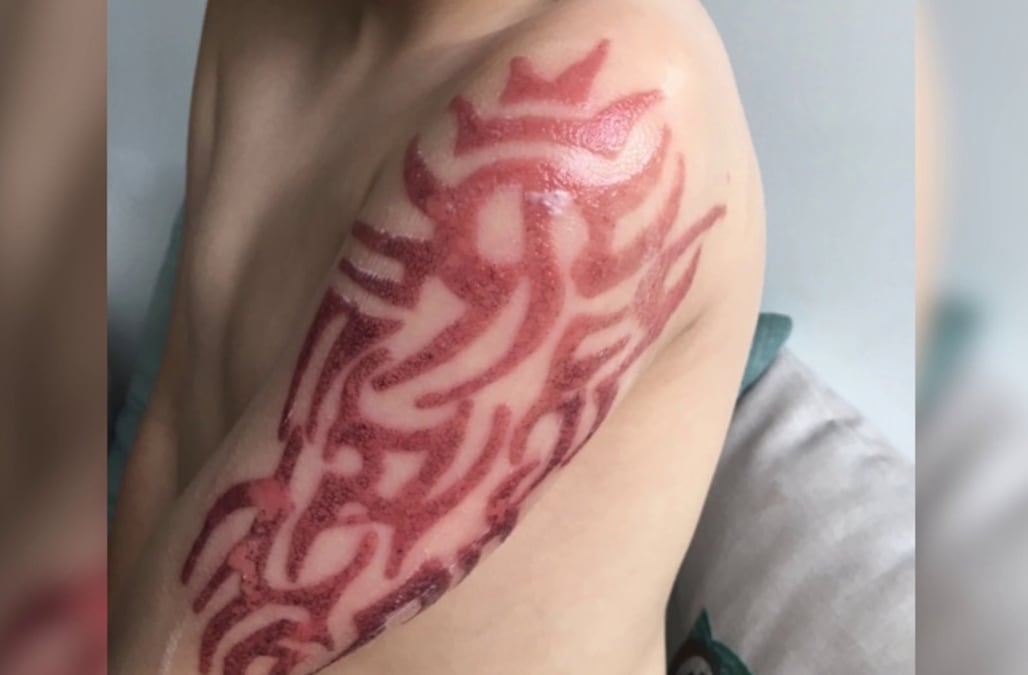 Five Year Old Boy Suffers Allergic Reaction To Henna Tattoo
