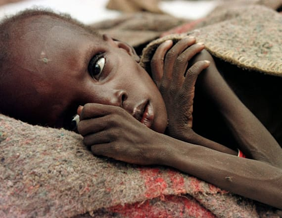 UN: 1.4 million children at imminent risk of death