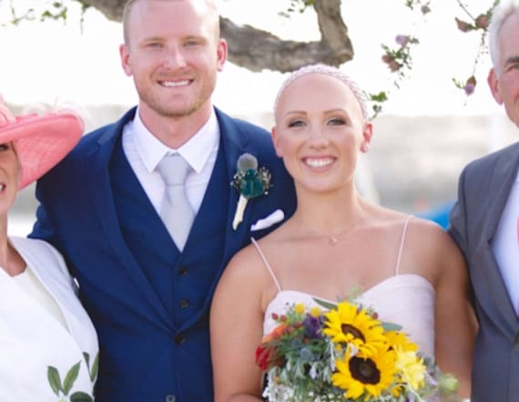 Bride with alopecia proudly shows off bald head