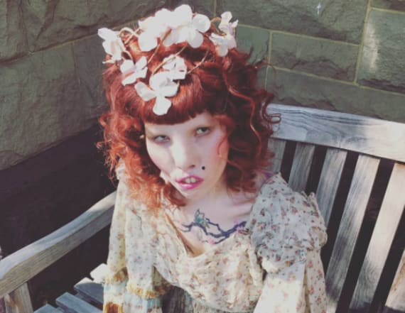 Young model with 'Cat Eye Syndrome' breaks barriers