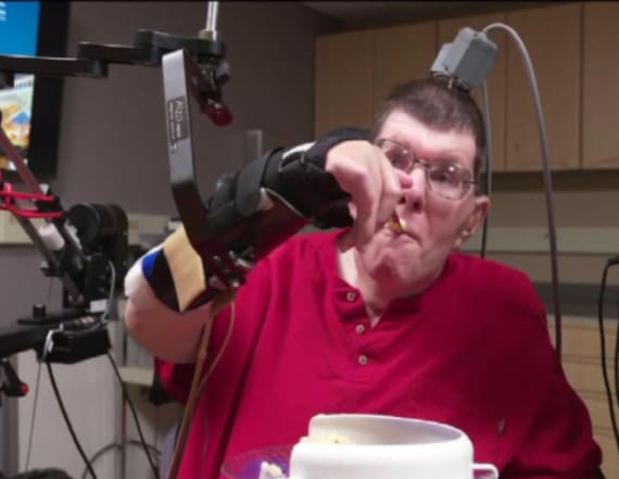 Paralyzed man moves limbs after new procedure