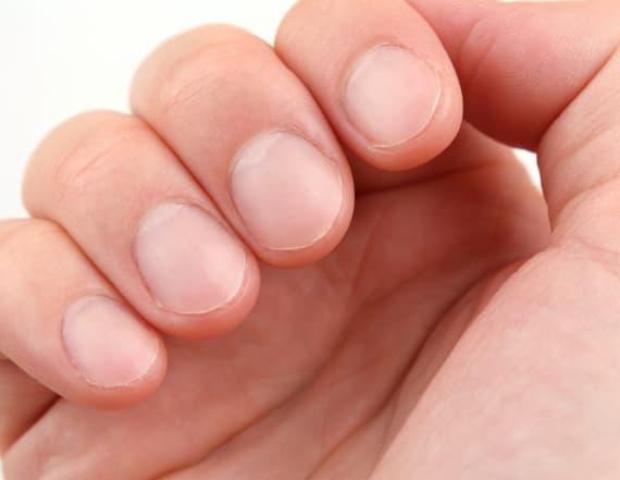 Heal damaged and peeling nails at home