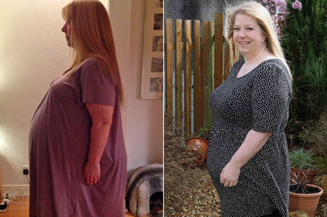 Overweight Woman Thought She Was Pregnant But Baby Bump