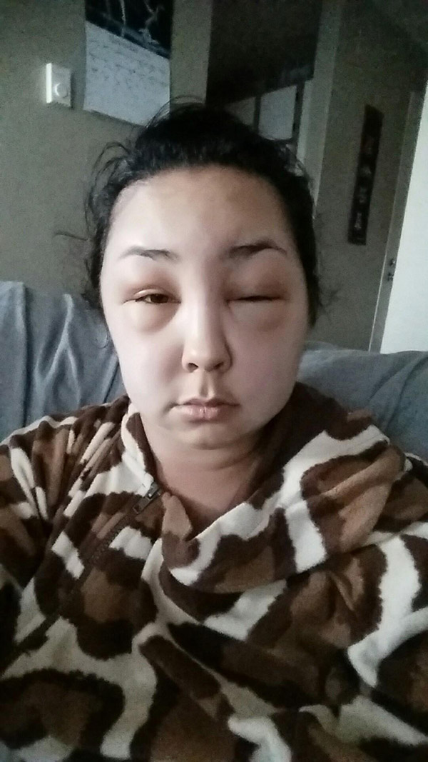 Girl has allergic reaction to hair dye