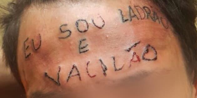 """Adolescente de 17 anos tem a testa tatuada com a frase  """"eu sou ladrão e vacilão""""."""