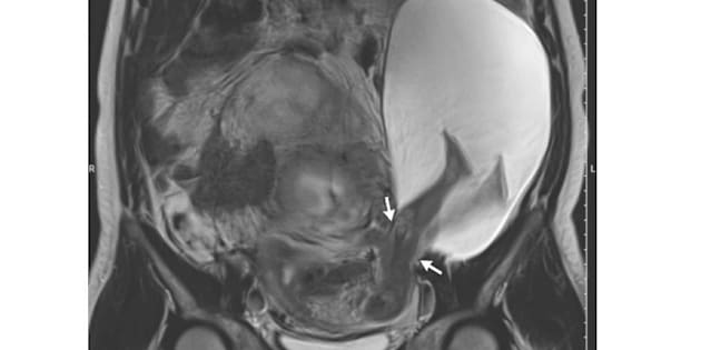 This image, taken using magnetic resonance imaging, shows the developing fetus in the woman's uterus. The two white arrows indicate the point where the woman's uterine wall ruptured and the amniotic sac, which is the large white spot, spilled out. The fetus's legs are visible in the amniotic sac.
