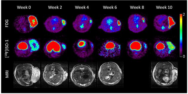 imagen de una investigación abierta que muestra diferentes neuroimágenes que muestran el crecimiento y la progresión de un cáncer durante 10 semanas.
