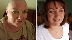 Nobody Talks About Loss Of Intimacy After Breast Cancer, These Women Want To Change