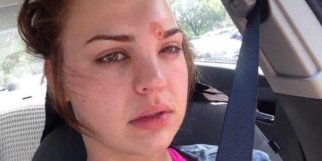 Les médecins de Katie ont réussi à guérir l'infection après un traitement de quatre jours.