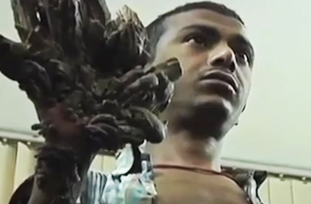 Rare genetic skin disorder causes man to look like a tree ...