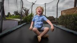 Impresionantes fotografías con las que esta artista empodera a niños con raras condiciones