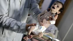 The Horrifying Death Of A Syrian Infant Underscores The Brutality Of Assad's Siege