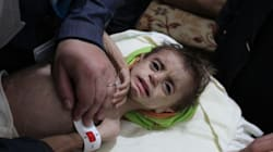 Child Trapped By Syrian War So Malnourished His Arms Were Like Aid Worker's 'Little