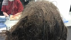 Teen's Hair Transformation Shows The Physical Impact Depression Can