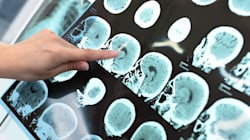 Anti-Epilepsy Drug Restores Normal Brain Activity In Alzheimer's