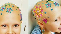 Esta pequeña con alopecia infantil nos da una lección sobre lo que es ver el vaso medio