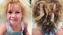 Cette petite est atteinte du syndrome des cheveux incoiffables, ses parents veulent sensibiliser le